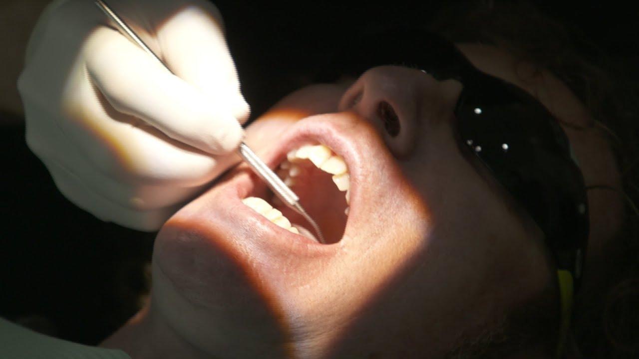 Rüyada Diş Çekmek ve Kanaması